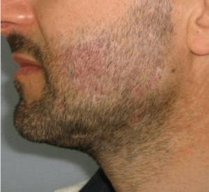 Beard Transplant After