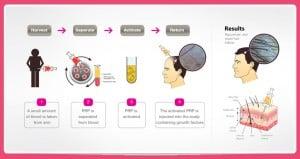 Platelet Rich Plasma PRP Procedure