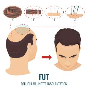 FUT transplant Glasgow