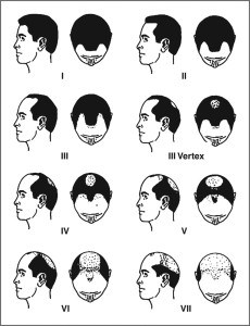 male-pattern-baldness-or-androgenetic-alopecia-230x300